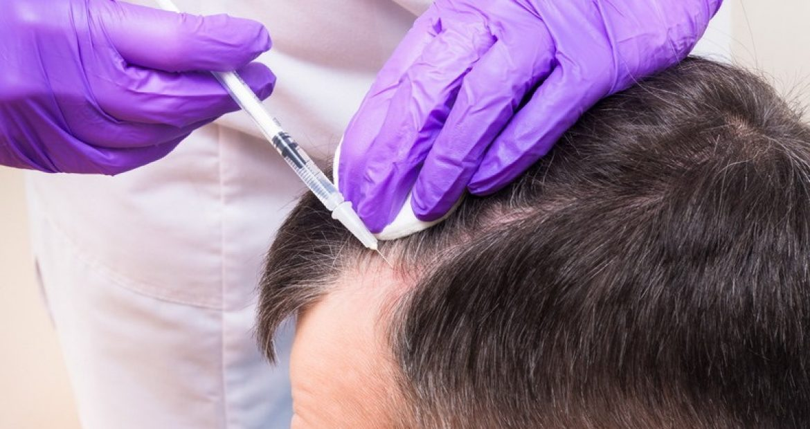 Would You Go 'Under the Needle' to Treat Hair Loss?